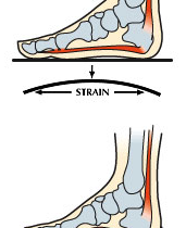 Why is my heel pain back?